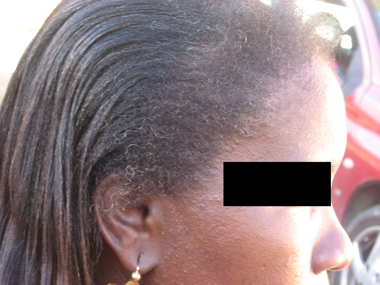 Greffe de cheveux femme prix