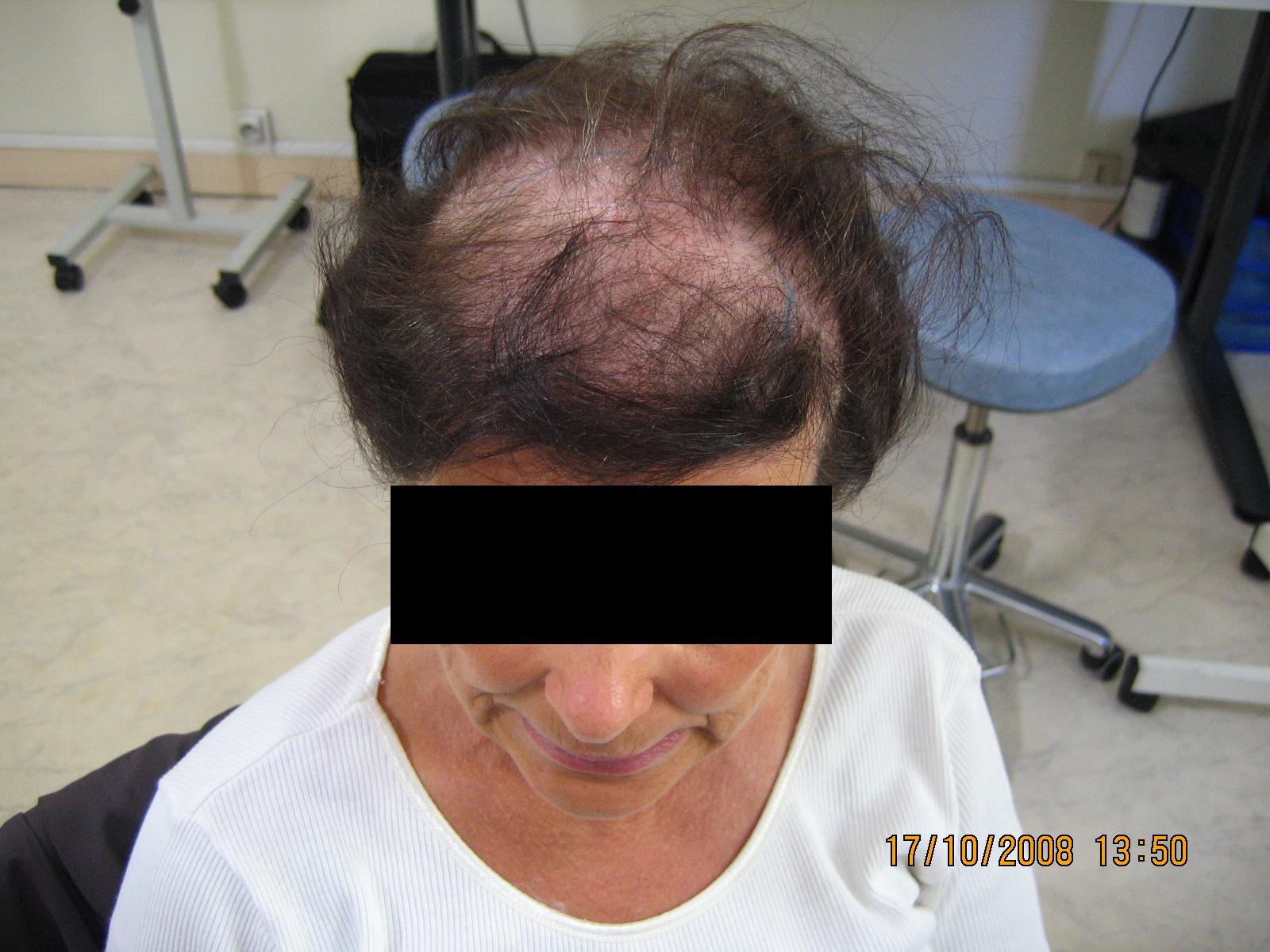 temoignage greffe cheveux implant capillaire chirurgie t moignage. Black Bedroom Furniture Sets. Home Design Ideas